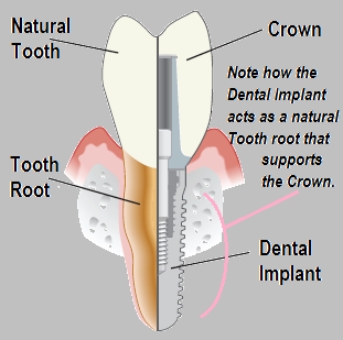 Traditional Implant